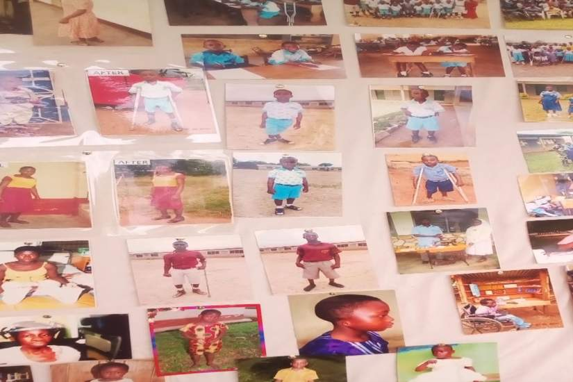 A collection of photos from Ancilla Community Based Rehabilitation (ACBR), Ghana, show
